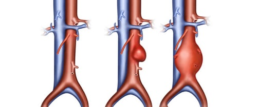 كيفية تشخيص التمدد الشرياني بالشريان الأورطي بالبطن