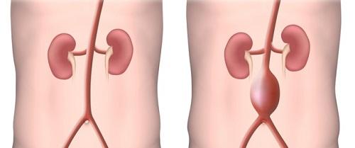 مرض تمدد الشريان الأورطي في البطن