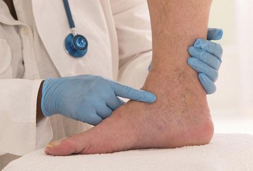 كيفيةتشخيص دوالي الساقين الأولية