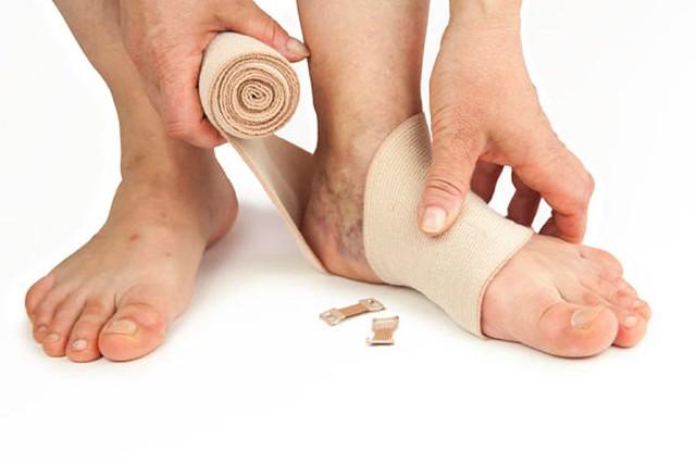 طرق علاج الدوالي الأولية بالساقين